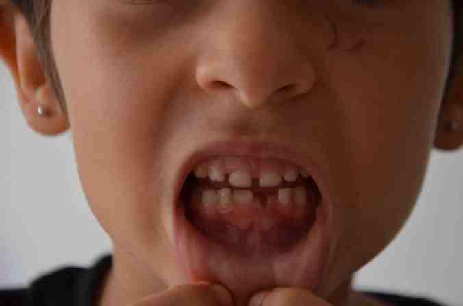 chi miri dente